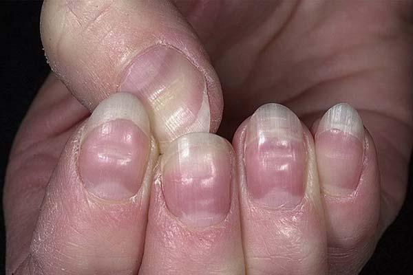 Неровные ногти на руках
