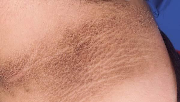 Гиперпигментация кожи на шее